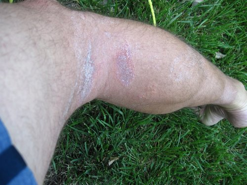 Poison ivy lesions on my right calf.